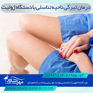 درمان تیرگی ناحیه تناسلی با دستگاه ژولیت