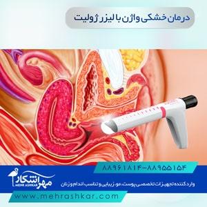 درمان خشکی واژن با لیزر ژولیت